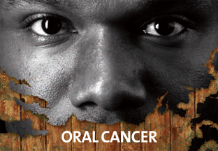 Oral Cancer Prevention Campaign image