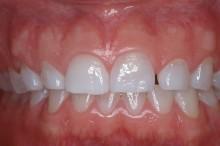 Shortened teeth due to wear