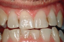 Yellow teeth and discolored fillings