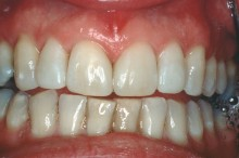 Restored upper teeth