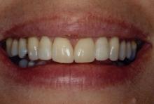 Smooth transition between teeth